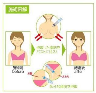 自体脂肪隆胸术后的保养还要注意六个月内不能