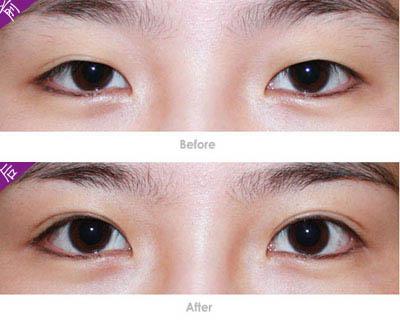 福州割双眼皮 做双眼皮手术 割双眼皮多少钱 韩式重睑 福州美莱华美美容医院