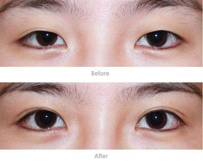 韩式双眼皮对比_校园女生 美丽就是竞争力_福州美莱华美美容医院