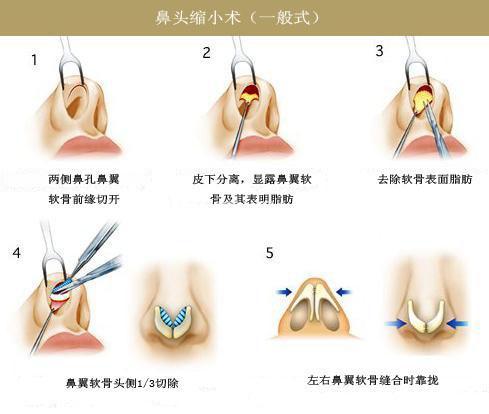 鼻头缩小与鼻翼缩小手术的差别_福州华美整形