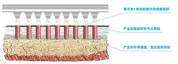 什么是离子束(Micro-Plasma)   Micro-Plasma离子束由以色?#24418;?#29702;学家Dr.Ziv.Karni博士发明,是利用多点单极射频(RF)激光微等离子作用,治 疗瘢痕等皮肤问题的全新技术。   当多点单极射频探靠近皮肤时,探与皮肤间隙中的氮气被激发成微等离子?#21050;?#22312;皮肤组织上建立热通道。    Micro-Plasma离子束的主要临?#24425;?#24212;症   各种类型疤痕:烧伤疤痕、手术后疤痕、痤疮疤痕、妊娠纹   离子束的疤痕治 疗原理:   微等离子可?#28304;?#30772;瘢痕处紊?#19994;?#33014;原排列,离子束在皮肤表面产