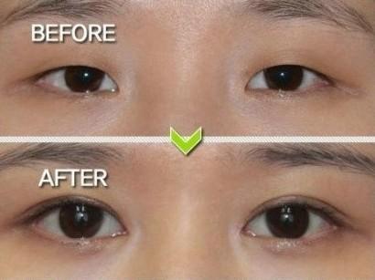 矫正简单双眼皮线解开的几率比切开法高