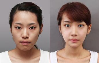 福州双眼皮修复效果怎么样,价格要多少