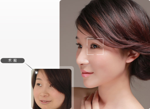 如何避免双眼皮手术后遗症 三个独 家步骤