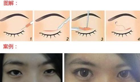 埋线法双眼皮做法相对简单