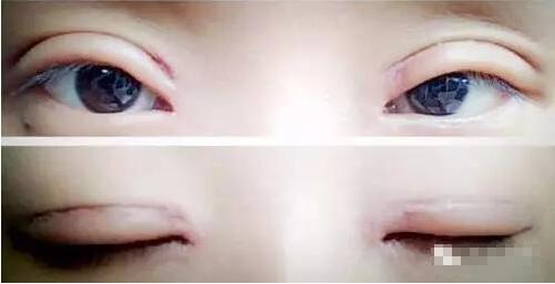 双眼皮 手术失败原因有哪些