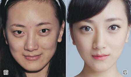纳米无痕双眼皮多久可以恢复
