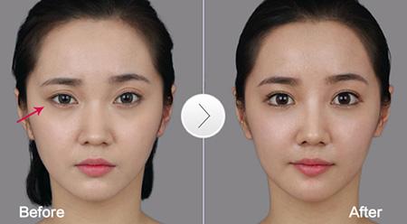 双眼皮手术过程_割双眼皮失败案例图片 分享割双眼皮失败案例_福州美莱华美美容 ...