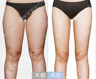 小腿吸脂减肥价格多少钱