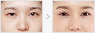 韩式双眼皮成形术