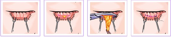 手术过程(摸拟图)