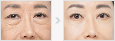 韩式祛眼袋