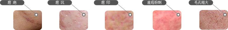 痘疤,痘坑,痘印,痤疮粉刺,毛孔粗大