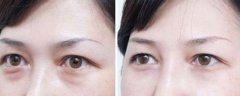 激光祛眼袋和手术祛眼袋哪个更好