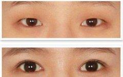 韩式双眼皮+开外眼角=小眼睛福音