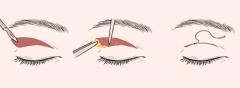 在福州双眼皮做哪种好?双眼皮术式全盘点!