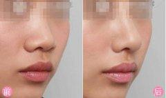 隆鼻后预防鼻尖发红的注意事项?