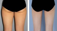 自体脂肪丰臀的效果好吗?