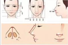 鼻综合都有哪些项目?分别适合哪些人群