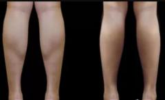 一般腿部抽脂大概要多少钱一次?多久恢复?