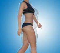 一般一次抽脂手术抽多少脂肪?