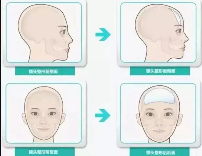 额头有凹陷可以填充吗?自体脂肪填充额头解决你的烦恼
