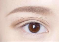 割双眼皮有哪些风险?割双眼皮的八大风险及处理方法