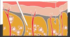 大腿吸脂后多久恢复?腿部吸脂恢复全过程介绍