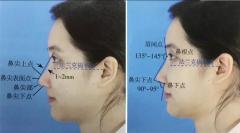 什么叫做鼻综合?鼻综合和单纯隆鼻一样嘛?