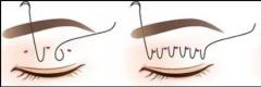 双眼皮术式怎么选?选适合的就对了
