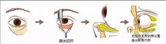 还在找除眼袋的好方法?激光祛眼袋三大优势了解一下?