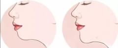 打玻尿酸隆下巴的效果怎么样?优势有哪些?