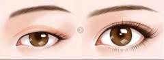 双眼皮手术后恢复期有多久?度过这五个阶段就稳了!
