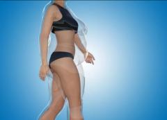 一般抽脂一次能抽多少脂肪?全身吸脂部位有多少?