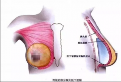 假体隆胸术前切口选择你了解多少?