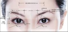 埋线双眼皮可以做第二次吗?隔多久可以做?