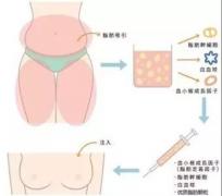 脂肪丰胸能维持多久?优势有哪些?