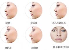 鼻部整形杂谈:哪个年龄段隆鼻比较好?
