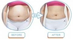 吸脂肪对身体有害吗?哪些人不能做吸脂手术