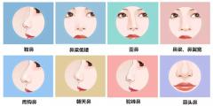 鼻整形修复术之隆鼻常见需修复并发症科普