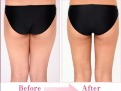 腿部吸脂多久恢复?吸脂术后恢复过程详解