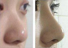 福州隆鼻的价格一般是多少钱?